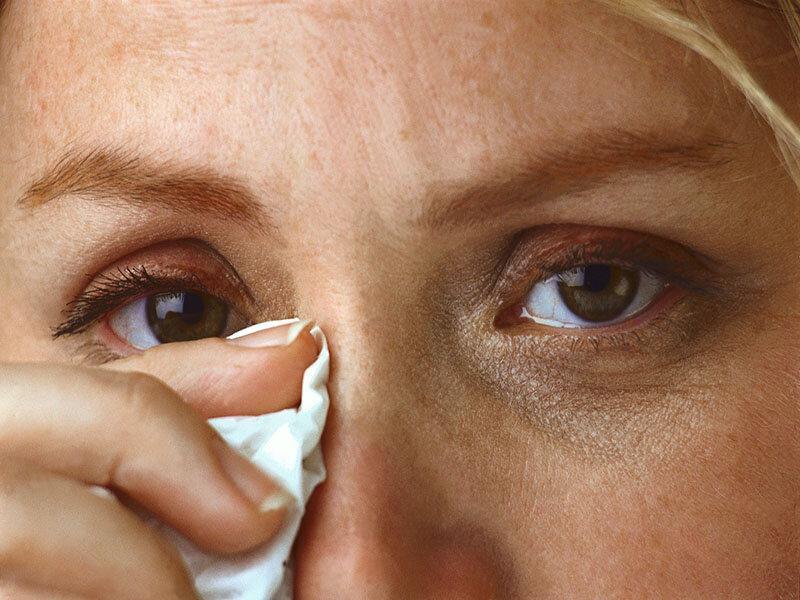 قرمزی چشم ممکن است نشانه عفونت با ویروس کرونا باشد