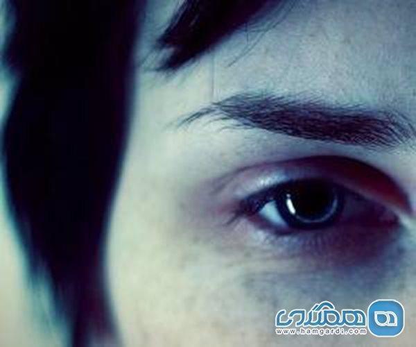 درمان تیرگی و کبودی دور چشم